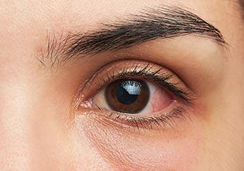 Augenkrankheit Behandlung Teufen Schweiz