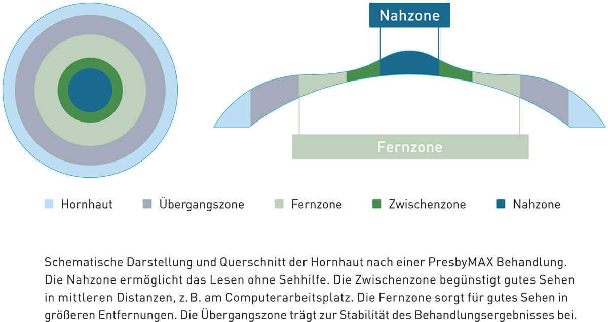 Nah & Fernzone PresbyMAX Teufen Schweiz